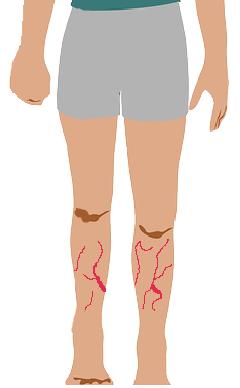 أسباب وأعراض وعلاج دوالي الساقين وعلاقته بالحمل Varicose legs