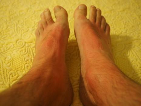 اسباب و اعراض و علاج حساسية الجلد بالأعشاب